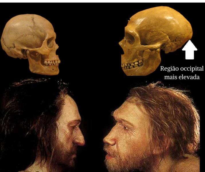 Região occipital maiselevada