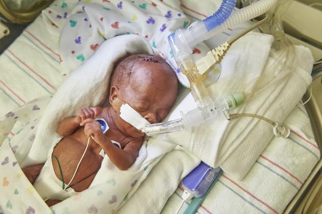 Bebê prematuro em incubadora. (Crédito: Hospital da Criança da Filadélfia.)