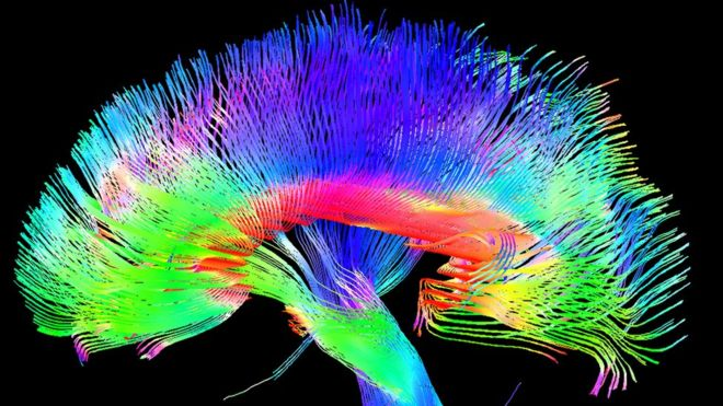 https://socientifica.com.br/wp-content/uploads/2017/06/95450791_p3350069-brain_pathways-spl.jpg