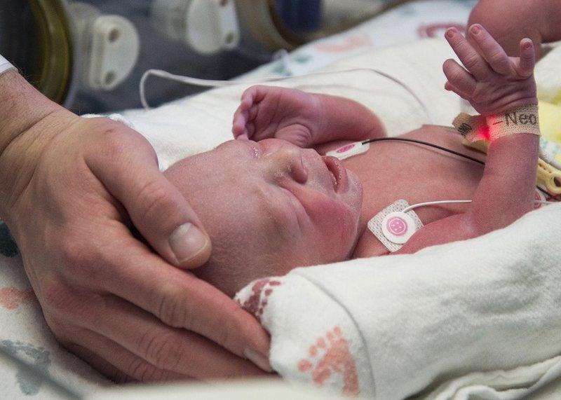 Médicos em Dallas, Texas, entregaram o primeiro bebê de um útero transplantado nos EUA. Médicos no Baylor University Medical Center em Dallas acreditam que este seja um marco da fertilidade humana. Crédito: Baylor University Medical Center