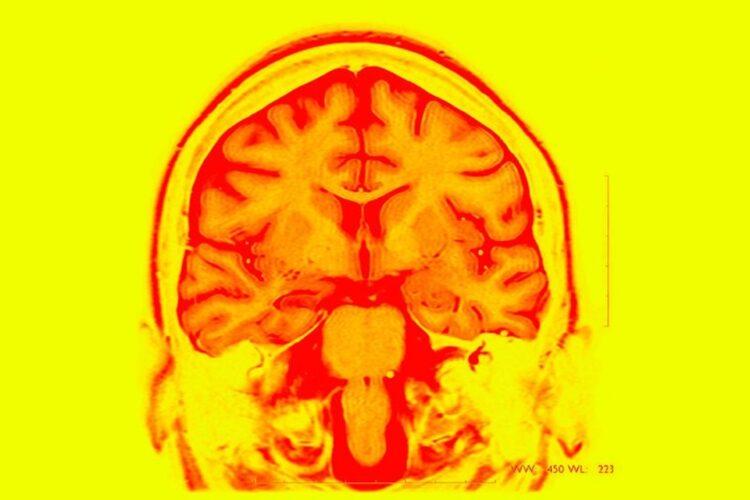 Imagem de ressonância magnética de um cérebro epiléptico. Cientistas testaram um implante cerebral que ajudara a memória em pessoas com epilepsia. (Bsip/UIG)