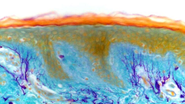 O novo órgão (ou talvez um tecido, não está claro ainda) pode ser encontrado por todo nosso corpo, inclusive no tecido conjuntivo sob a nossa pele. (Imagem: Kevin Mackenzie, University of Aberdeen, Welcome Colection).