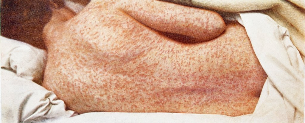 Movimentos anti-vacinas fizeram 37 pessoas morrerem de sarampo este ano na Europa
