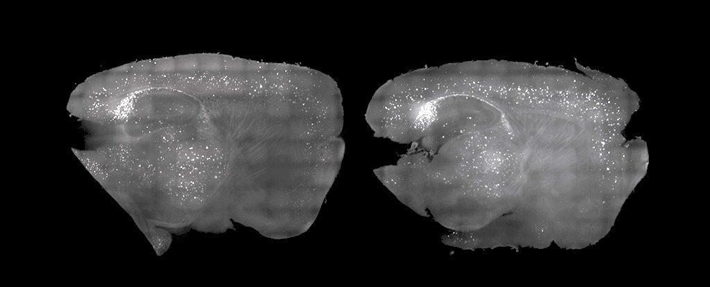 """Cientistas """"limpam"""" placa de Alzheimer utilizando somente luz e som"""