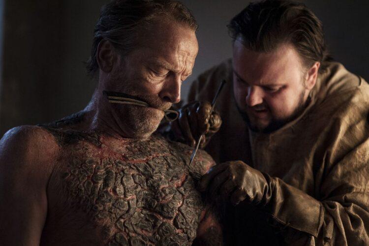 Jorah Mormont é infectado com uma doença que o transforma em pedra em Games of Thrones (Imagem: HBO)