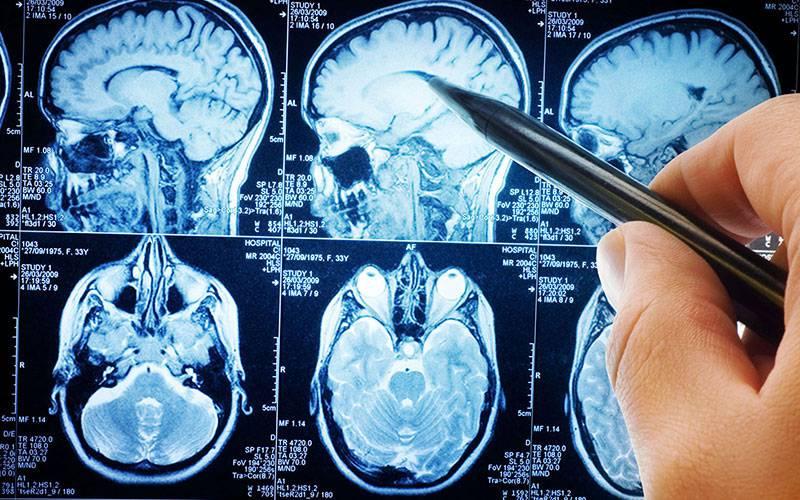 Resultado de imagem para Nova tecnologia permite classificar o tumor cerebral mais comum em crianças