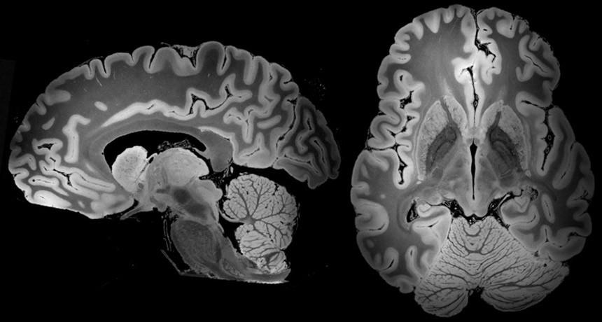 https://socientifica.com.br/wp-content/uploads/2019/07/cérebro-humano.jpg