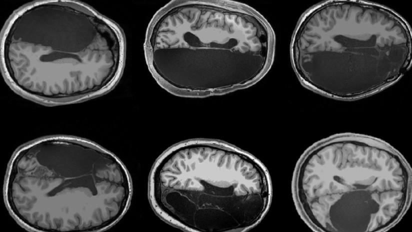 https://socientifica.com.br/wp-content/uploads/2019/11/Cérebro-1.jpg