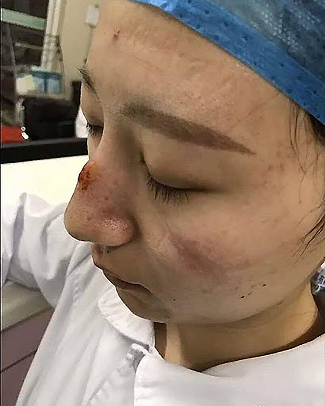 Para prevenir a infecção, a equipe médica de Wuhan atualmente precisa usar equipamentos pesados, incluindo máscaras ou óculos de proteção presos firmemente à pele, é uma questão de proteção.