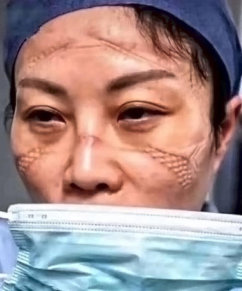 Equipe de médicos de Wuhan mostra marcas causadas por equipamentos, segundo a mídia local, os trabalhadores estão esgotados e muitos acabam dormindo no em cadeiras ou próprio chão dos hospitais antes de começar o turno seguinte. (Crédito: AsiaWire)