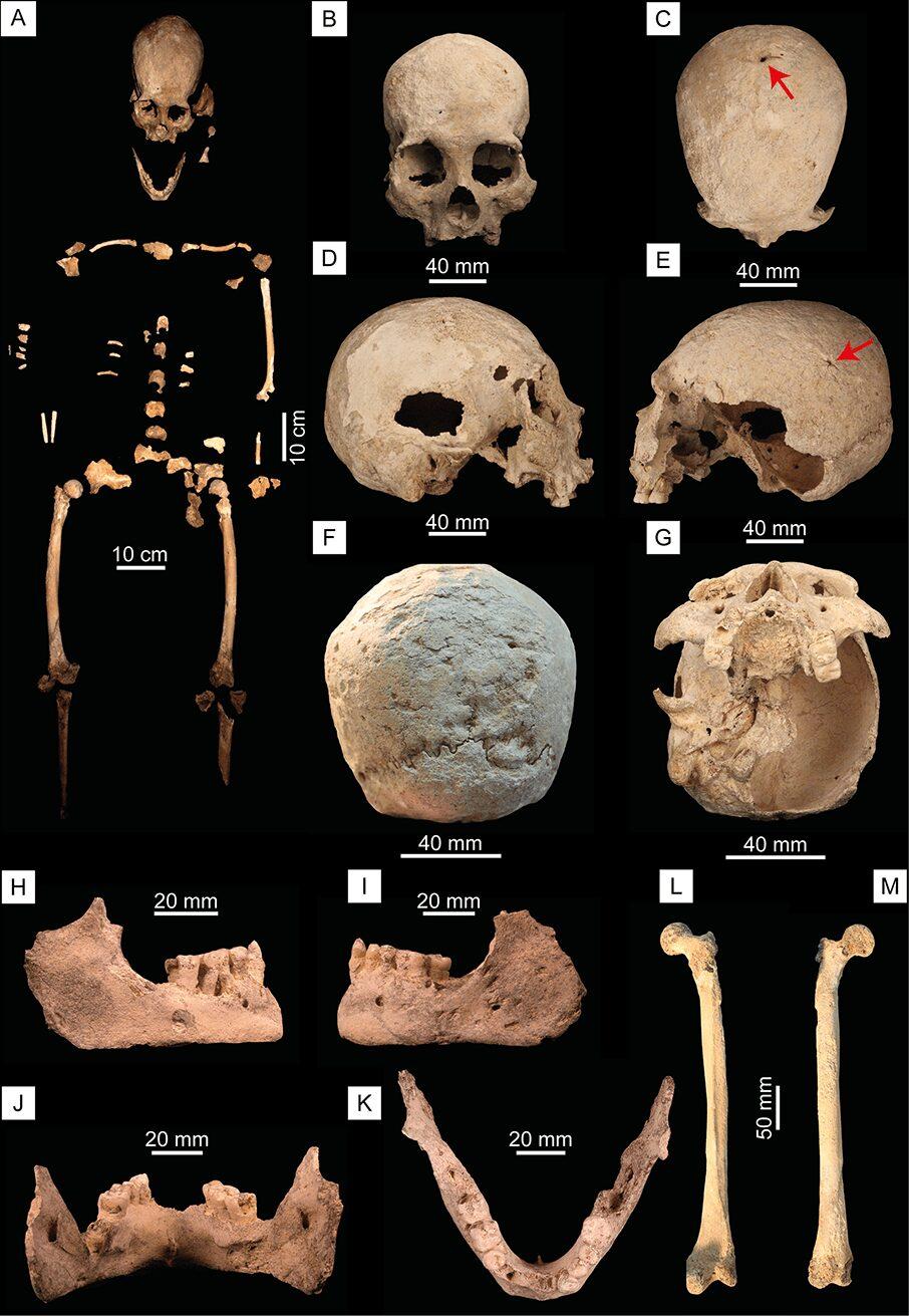 (A) Mapa ósseo do esqueleto Chan Hol 3. (B) Crânio em vista rostral. (C) Crânio em vista dorsal. A seta aponta para um trauma na porção posterior do parietal. (D) Crânio em vista lateral direita. (E) Crânio em vista lateral esquerda. A seta vermelha aponta para trauma no osso parietal. (F) Crânio em vista caudal. Observe uma extensa destruição óssea no osso occipital aqui interpretada como resultado de doença bacteriana treponemal. (G) Crânio em vista ventral. (H) Mandíbula em vista lateral direita. (I) Mandíbula em vista lateral esquerda. (J) Mandíbula em vista caudal. (K) Mandíbula em vista dorsal. (L) Fêmur direito em vista frontal e (M) posterior.  (Imagem: PLOS ONE / https://doi.org/10.1371/journal.pone.0227984.g003)