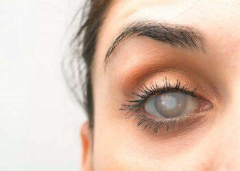 Imagem ilustrativa, olho com catarata. (sruilk / Shutterstock.com)