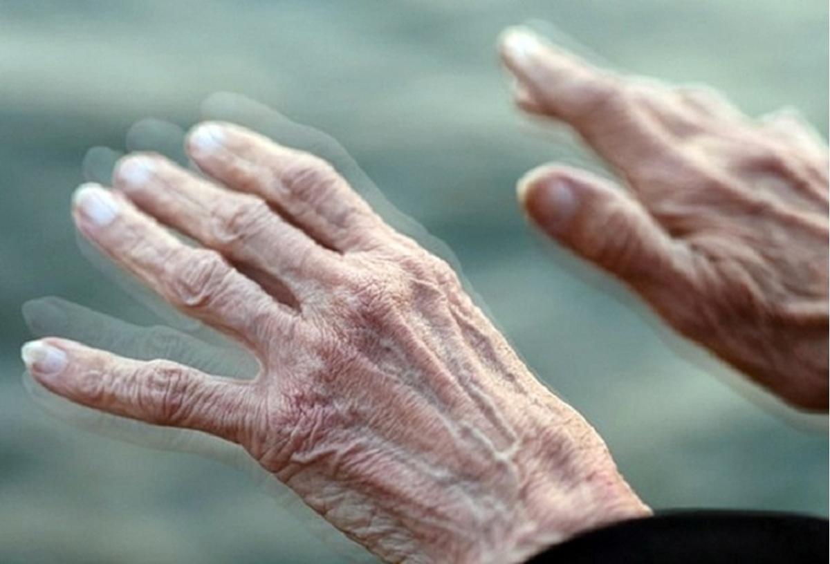 Cientistas conseguiram reverter a doença de Parkinson