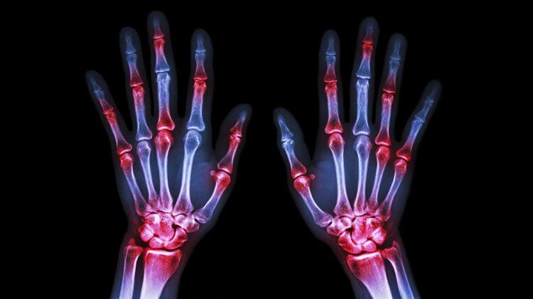 Teste para Artrite reumatóide
