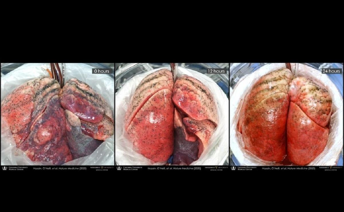 pulmões humanos
