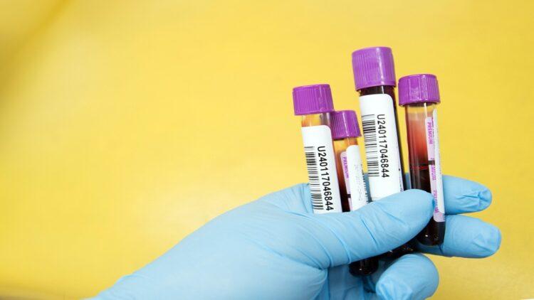 tubos para exame de sangue