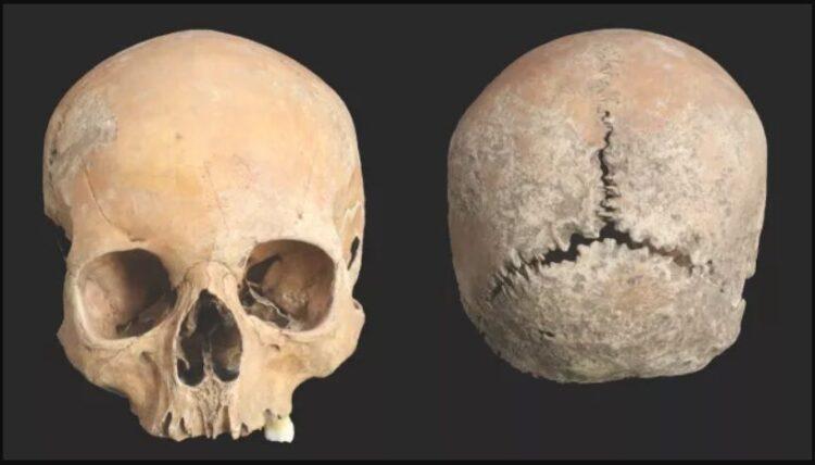 crânio mutilado