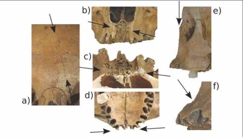 detalhes do crânio