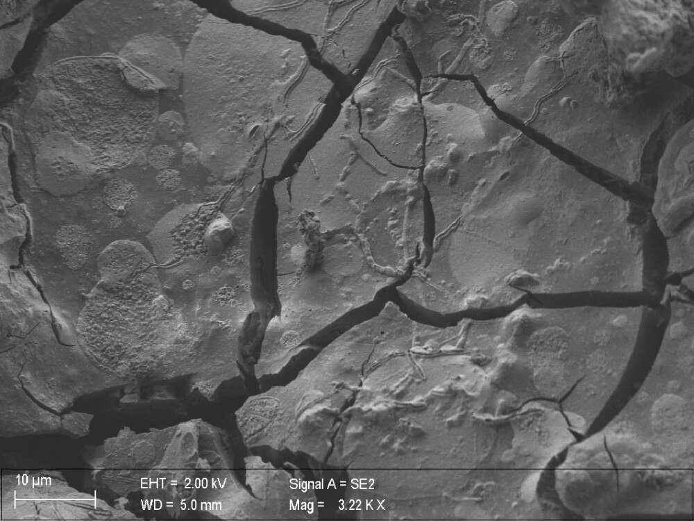 estruturas dos neurônios