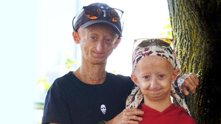 Pessoas com a doença genética progéria, como este irmão e irmã da Bélgica, envelhecem muito rapidamente e muitas vezes morrem antes dos 15 anos.  (THE PROGERIA RESEARCH FOUNDATION)