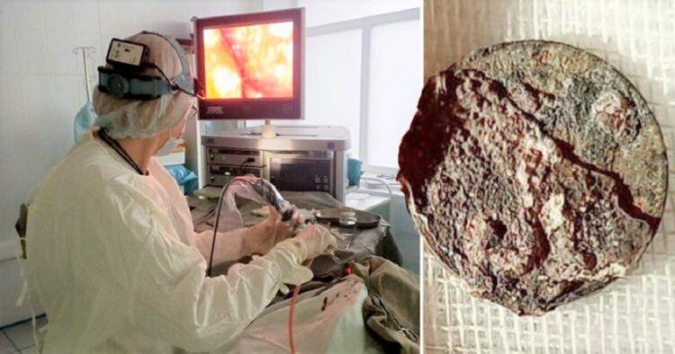 Moeda removida de homem após 50 anos presa em seu nariz