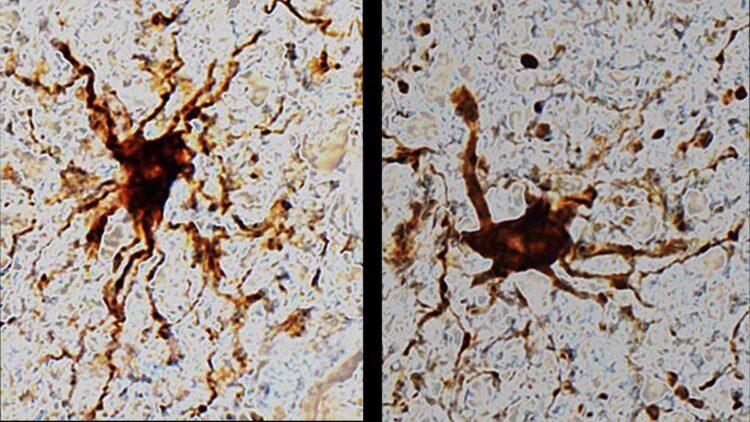 após a morte células cerebrais continuam vivas