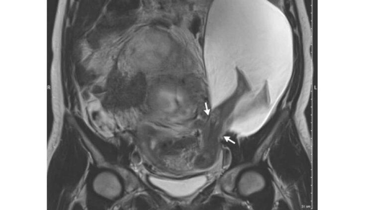 Num caso extremamente rao, este bebê colocou as pernas para fora do útero da mãe. Imagem: The New England Journal of Medicine