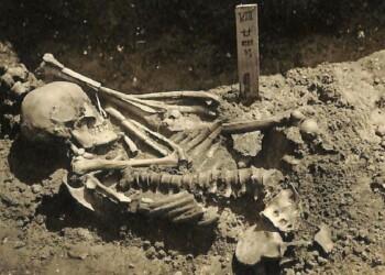 Esqueleto de 3.000 anos do homem morto por um tubarão. Imagem: Laboratório de Antropologia Física/Universidade de Kyoto