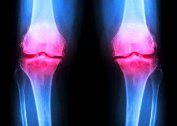 Injetar hidrogel é a esperança para corrigir cartilagens danificadas